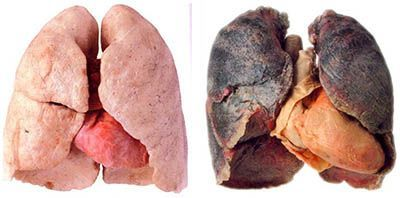 lung cancer treatment india, madurai, tamil nadu